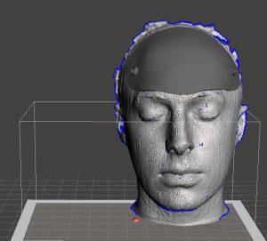 protesis_2