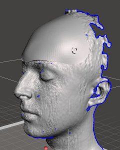 protesis_3