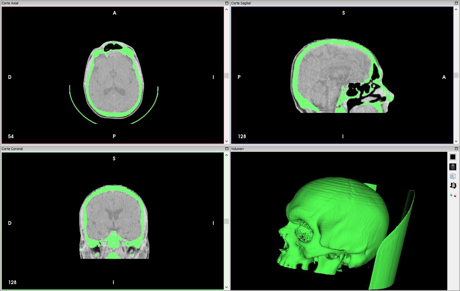 Impresión 3D de maxilar a partir de una resonancia magnética